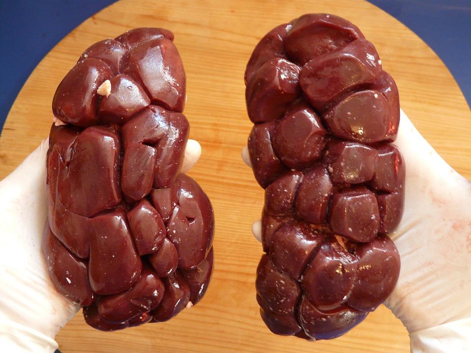 How To Reverse Kidney Disease – Eye Opener on Kidney Problems